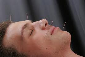Acupuncture for headaches - BodyMindWellnessCenter.com