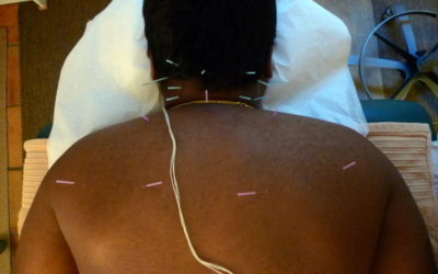 Cure Tension Headaches with Acupuncture