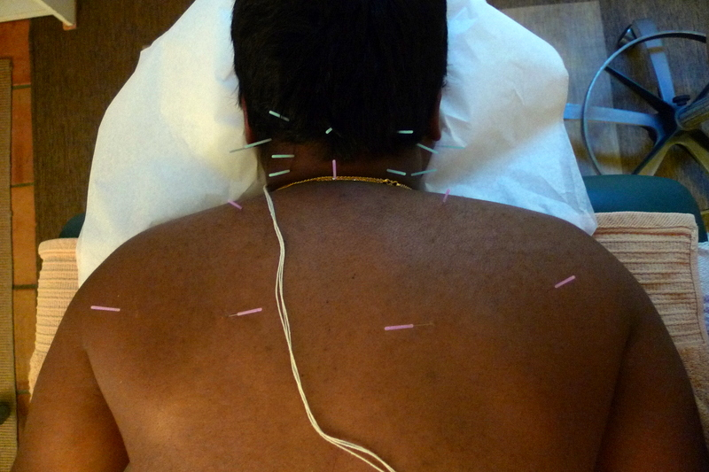 Dry Needling for Chronic Neck and Shoulder Pain in Software Engineer in San Diego by Eyton Shalom, M.S., Licensed Acupuncturist