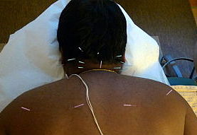 Dry Needling for Neck Pain
